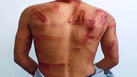 وضعیت یک عکاس پس از آزادی از بازداشت طالبان